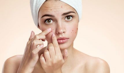 acne scarring clinic